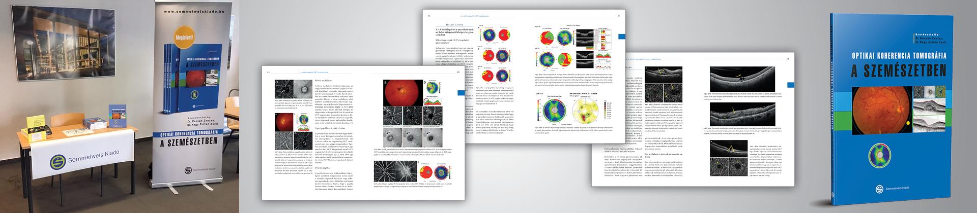koherencia tomográfia a szemészetben különböző látás 2 szemben